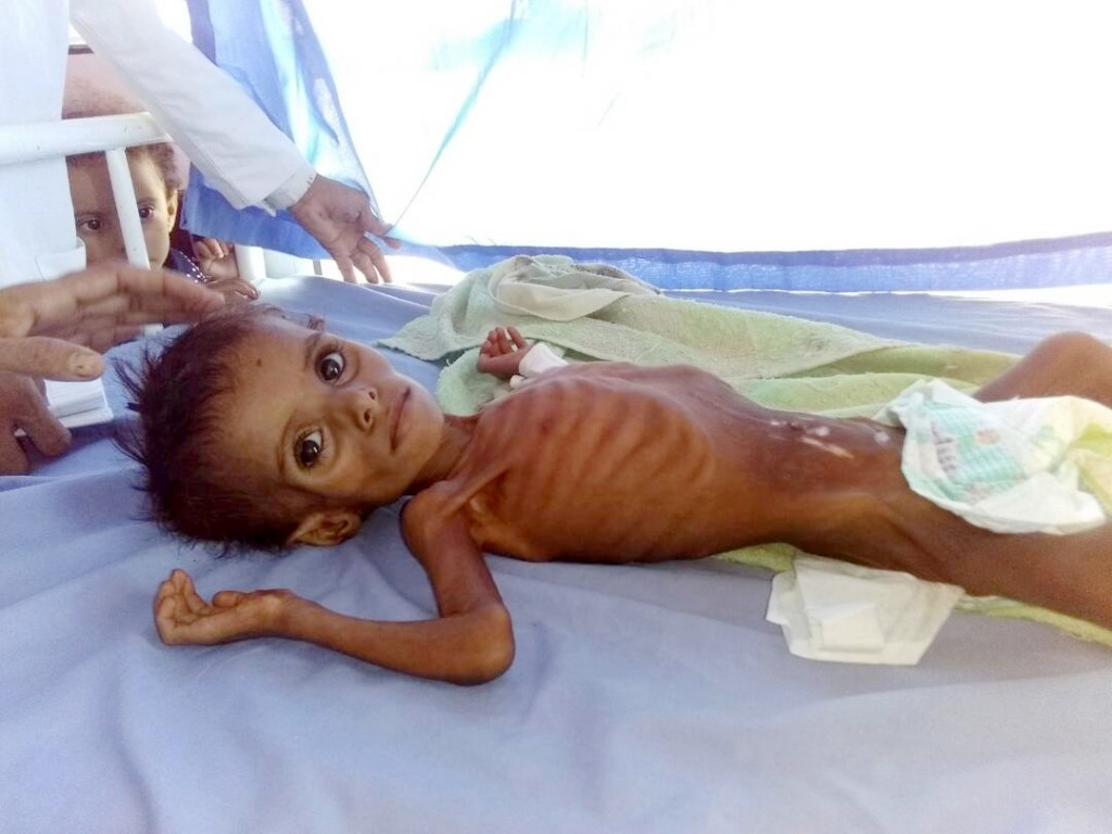 This undated 2018 handout image provided by Dr. Mekkiya Mahdi, Head of Aslam Health Center, shows a severely malnourished child at the Aslam Health Ce...