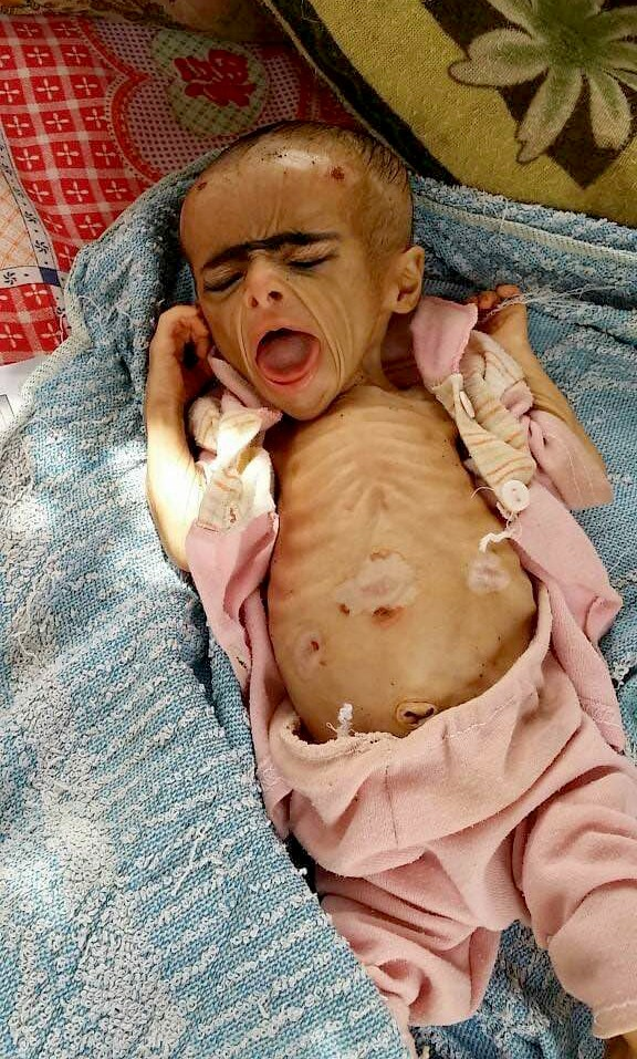 This 2018 handout image provided by Dr. Mekkiya Mahdi, Head of Aslam Health Center, shows a severely malnourished infant at the Aslam Health Center in
