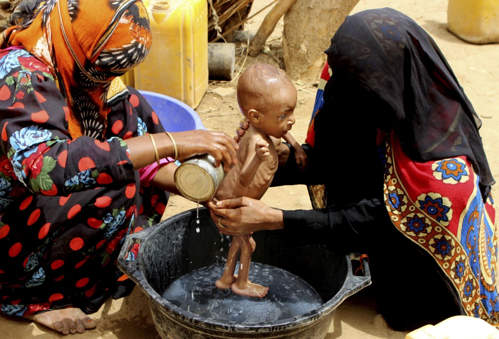 In this Aug. 25, 2018 photo, a severely malnourished infant is bathed in a bucket in Aslam, Hajjah, Yemen. Yemen's civil war has wrecked the impoveris