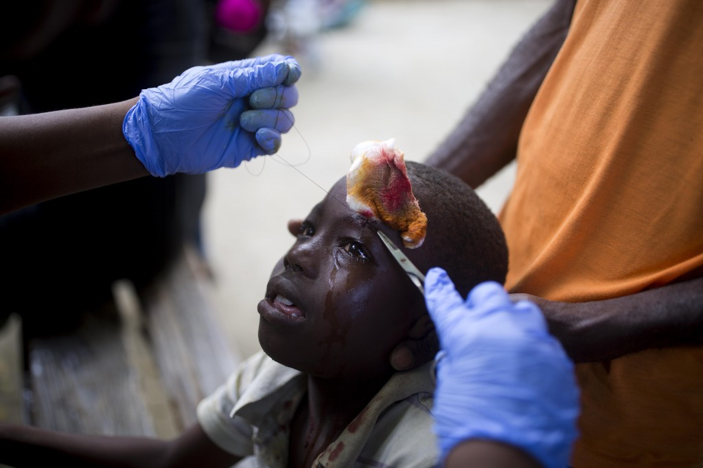 In this Sunday, Oct. 7, 2018 photo, a boy who was injured during an aftershock receives treatment at the general hospital in Port-de-Paix, Haiti. A ma