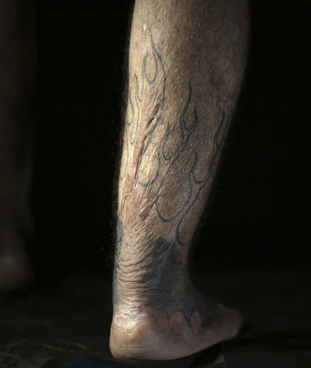 In this Wednesday. Oct. 24, 2018, photo, Iraqi soldier Saad Khudeir displays a tattoo on his leg to cover scars of the burns he suffered in a car bomb