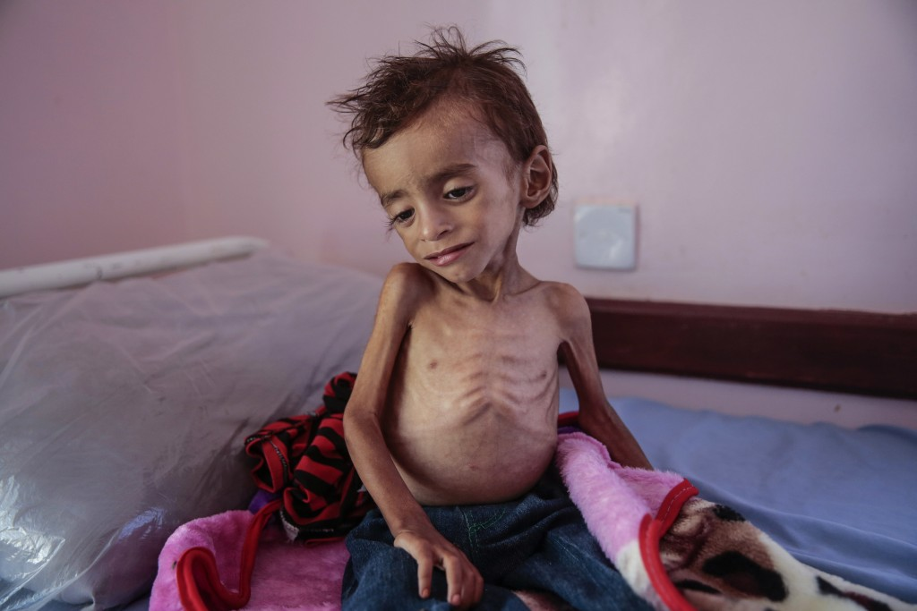FILE - In this Oct. 1, 2018, photo, a malnourished boy sits on a hospital bed at the Aslam Health Center, Hajjah, Yemen. A UN report says feeding a hu