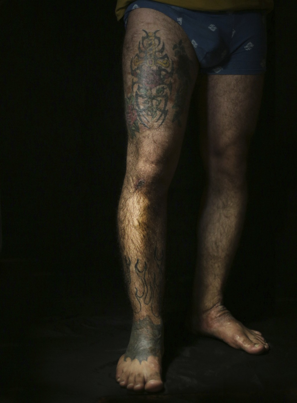 In this Wednesday. Oct. 24, 2018, photo, Iraqi soldier Saad Khudeir displays tattoos on his leg to cover scars of the burns he suffered in a car bombi