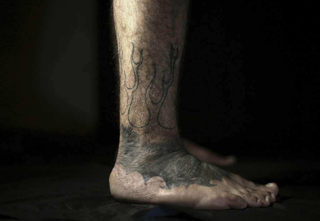 In this Wednesday, Oct. 24, 2018, photo, Iraqi soldier Saad Khudeir displays his tattoo on his leg covering scars of the burns he suffered in a car bo