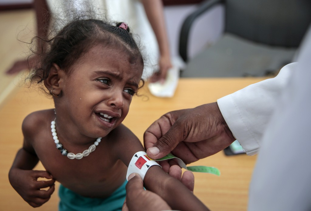 FILE - In this Oct. 1, 2018, file, photo, a doctor measures the arm of malnourished girl at the Aslam Health Center, Hajjah, Yemen. Envoys from Yemen'