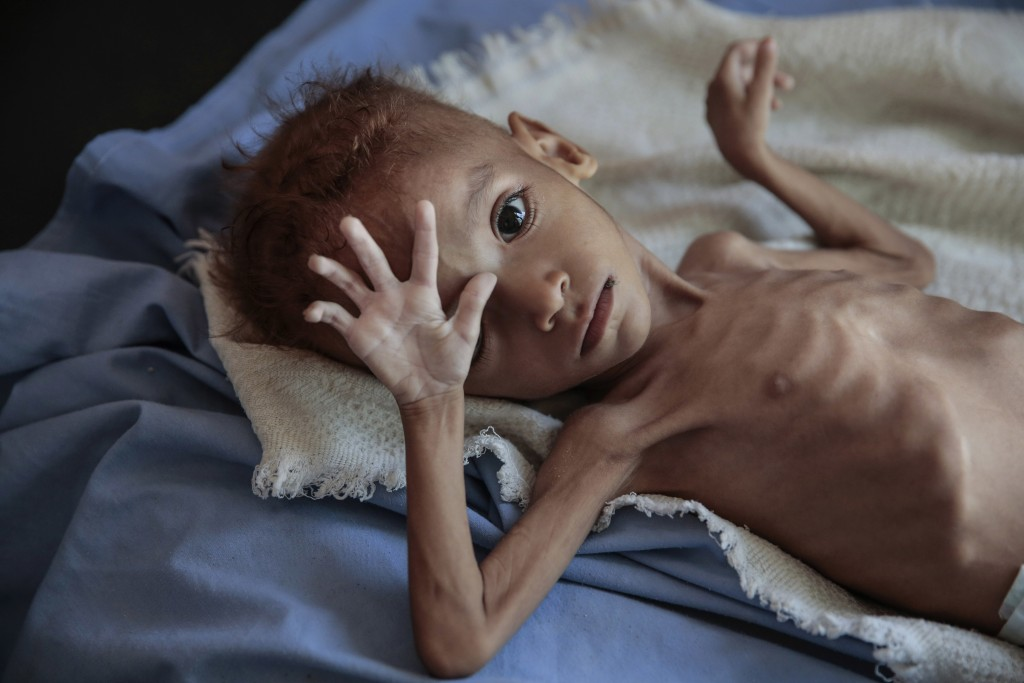 FILE - In this Oct. 1, 2018, file, photo, a severely malnourished boy rests on a hospital bed at the Aslam Health Center, Hajjah, Yemen. Envoys from Y