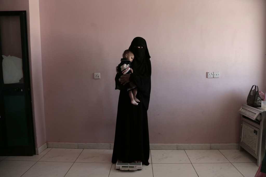 FILE - In this Feb. 13, 2018, file, photo, Umm Mizrah, a 25-year-old Yemeni woman, holds her son Mizrah on a scale in Al-Sadaqa Hospital in the southe