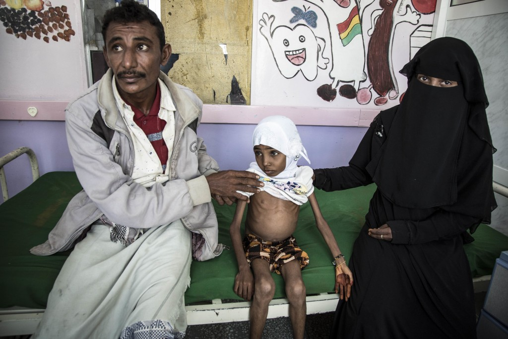 In this Nov. 15, 2018 photo, 10-year-old Affaf, who weighs 9,6 kg (21 pounds), sits with her parents at a hospital in Hajjah, Yemen. The U.N. food age