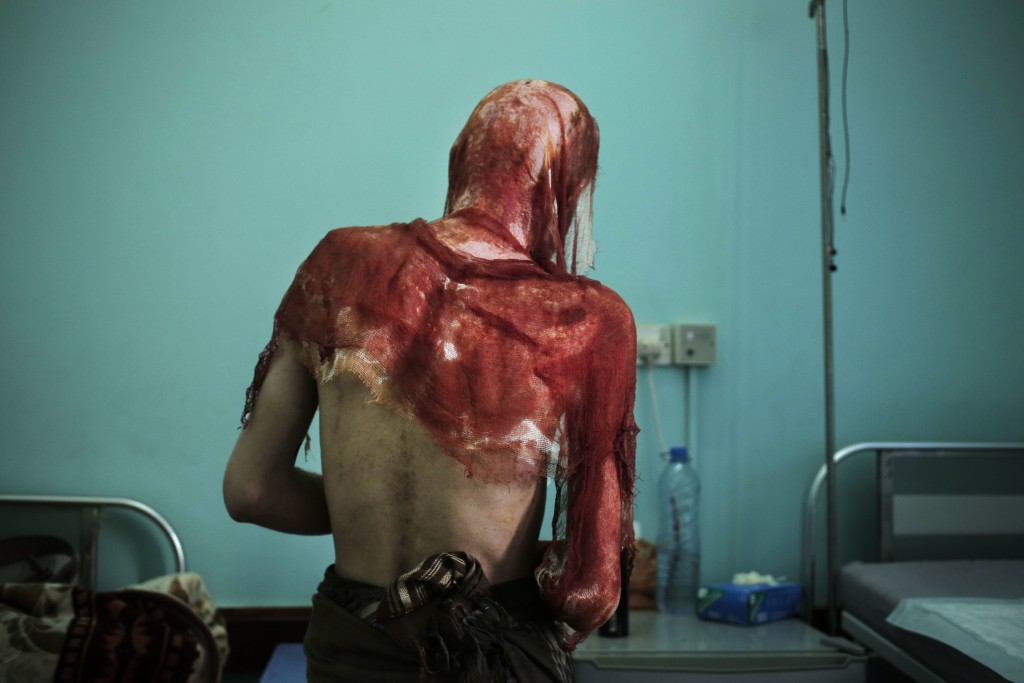 Monir al-Sharqi walks to his bed after nurses changed the dressings on his burns, at the Marib General Hospital in Yemen in this July 25, 2018 photo.