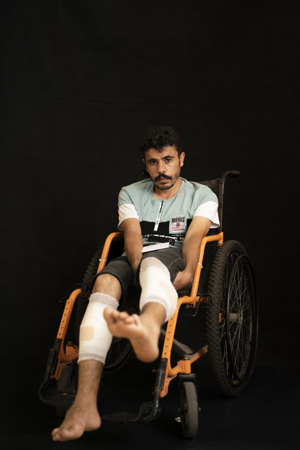 In this Sept. 19, 2018, photo, Ayman Harb, 36, poses as he awaits treatment at a Gaza City clinic run by MSF (Doctors Without Borders). Harb, a parame...