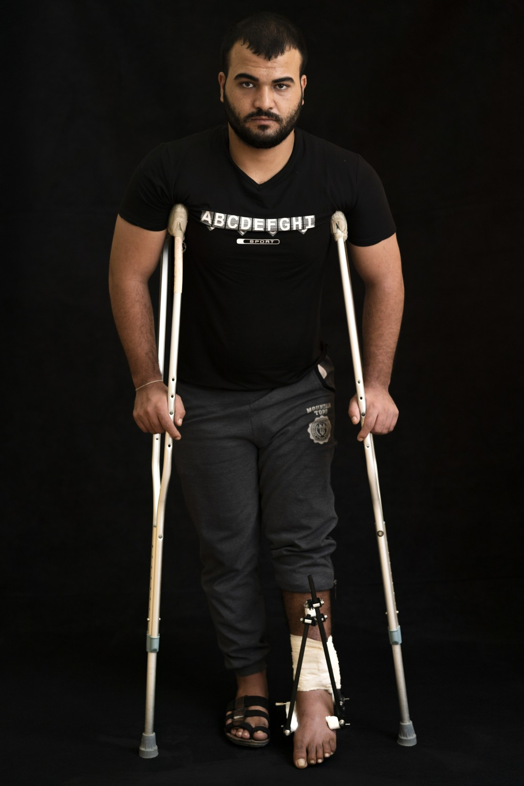 In this Sept. 19, 2018, photo, Mahmoud Saad, 25, poses as he awaits treatment at a Gaza City clinic run by MSF (Doctors Without Borders). Saad says he...