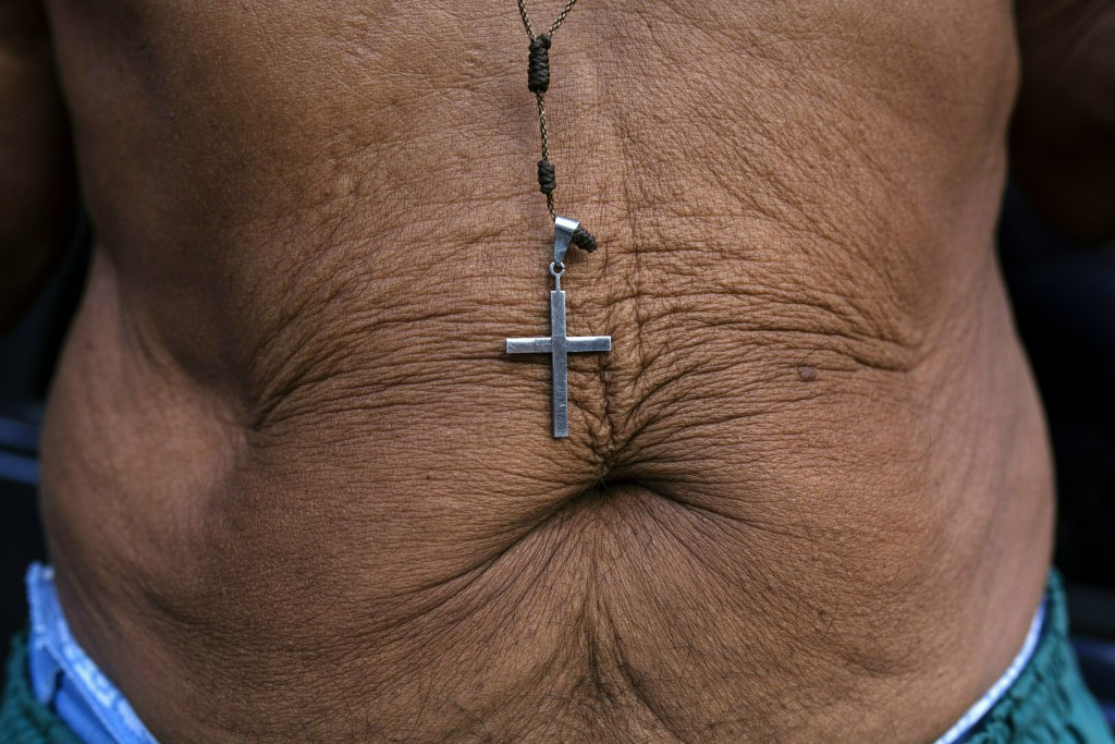 In this Feb.1, 2019 photo, a crucifix hangs over the belly of 71-year-old Rafael Ricardo, in Caracas, Venezuela. Ricardo says he has lost 21 kilos in