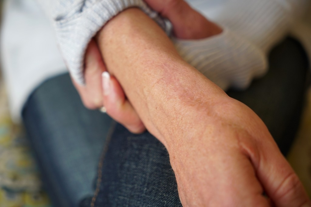 In this Wednesday, March 27, 2019, photo, Kacey Ruegsegger Johnson shows her scars during an interview at her home in Cary, N.C. Ruegsegger Johnson su...