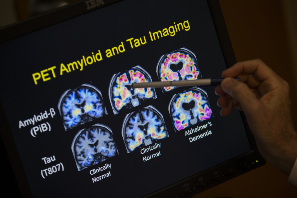FILE - In this May 19, 2015, file photo, a doctor points to PET scan results that are part of a study on Alzheimer's disease at a hospital in Washingt