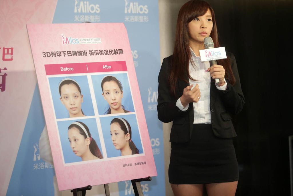 醫美業者將3D列印技術運用在整形上,業者14日舉辦記者會表示,可利用3D列印客製化下巴,讓臉型線條更加自然。圖為使用者言言現身說法。中央社...