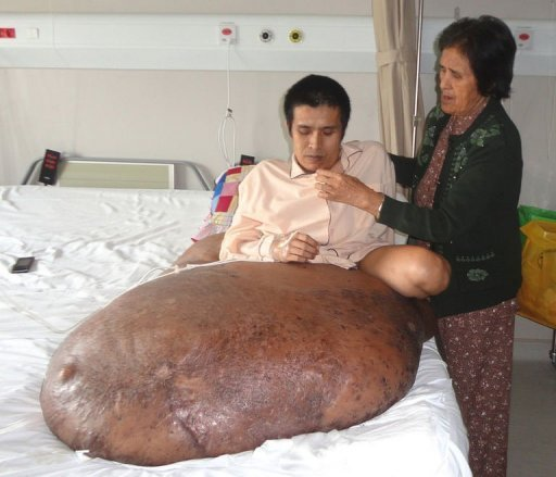 Vietnamese Nguyen Duy Hai, 31 lies on a bed with his 90-kilogram tumour next to his mother at FV hospital (France-Vietnam hospital) in Ho Chi Minh Cit...