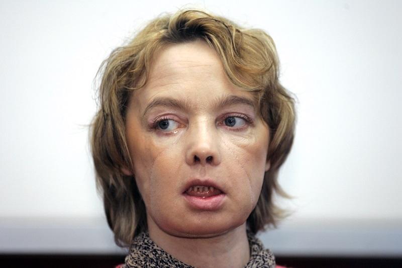 全球首位臉部移植女病患 11年後罹癌辭世