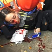 香港「爆眼少女」登上《紐約時報》頭版 訴說人民迫以血去捍衛社會