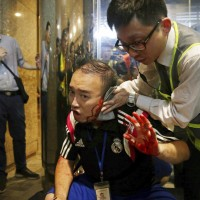 Attacker bites politician's ear, others slashed in Hong Kong