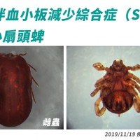 First case of tick-borne SFTS discovered in Taiwan