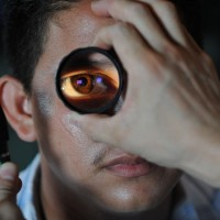 【眼科里程碑】透過眼內藥物注射 有效治療黃斑部病變