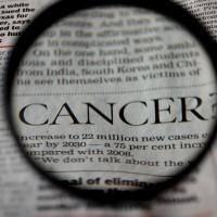 肺癌新一代口服化療獲健保給付 副作用小 不用擔心掉髮、噁心嘔吐