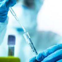 韓國研究:武漢肺炎無症狀者病毒量不低 有隔離之必要性