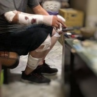 3 injured in Taiwan's second bloody pit bull attack in 2 weeks