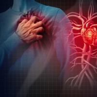 台灣研究:心血管疾病趨向年輕化 關鍵可能在「高血脂」