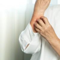 乾癬不只是皮膚病!台灣乾癬協會:若疏於治療 恐引爆心血管、腸癌等35種疾病危機