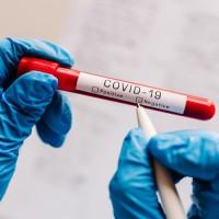 日本疑出現最新武肺變種病毒?! 美國FDA警示:變種病毒恐誤導3款檢測劑呈偽陰性