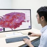 【台灣醫療科技新突破】人工智慧3分鐘自動辨識「肺腫瘤」類型 準確率95%以上