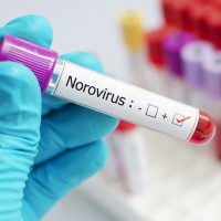 CDC issues norovirus warning after Taiwan sees surge in cases