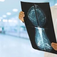 日本研究:女性停經前飲酒頻率越高 罹乳癌風險越高