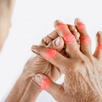 【輕忽類風濕性關節炎 恐危及心血管】生物製劑及早介入 有效提升患者生活品質