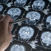 阿茲海默症有藥醫!近20年來首款 美國FDA批准Aduhelm上市
