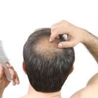 日本研究顯示: 高脂飲食不但讓人肥胖 還可能導致掉髮或毛髮稀疏