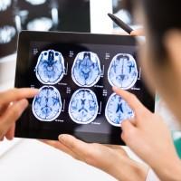 5分鐘就有1人確診「多發性硬化症」 醫籲肢體無力、暈眩者應盡早就醫 重症者有認知障礙、失能風險
