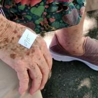 突破性感染重症好發2族群! 老人及多重疾病患者要小心