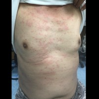 Mysterious Penghu caterpillar rash spreads to southern Taiwan