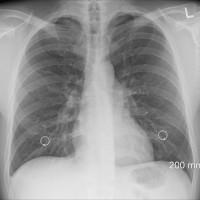 生活周遭的印表機 薰香 大理石 恐提高肺癌罹患率