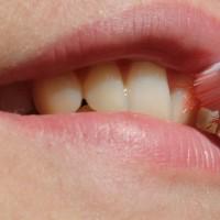 乳牙健康與否關乎幼童課業學習力