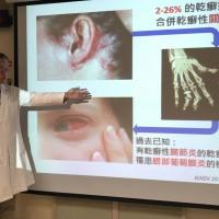 乾癬放任不管 恐引起眼睛葡萄膜炎 洗腎機率更增3倍