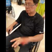 Retired colonel's finger cut off by police during anti-pension reform protest