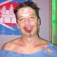 British man beaten by 10 Chinese in Cambodia for having 'Taiwan' tattooed on his forehead