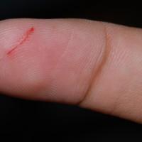 噢!為什麼手指被紙割到會這麼痛?