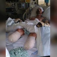 美國男子被狗「舔」 遭細菌感染截四肢