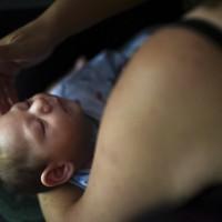茲卡遺毒 兩年過去 那些寶寶正面臨哪些新併發症?