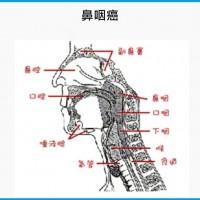 鼻咽癌好發於40至49歲 歸因遺傳、EB病毒感染、環境影響