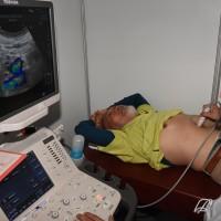 新北免費肝癌篩檢 1733名受測者逾5成有脂肪肝